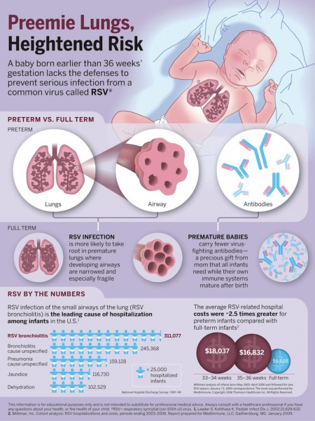 Preemie Lungs Infographic