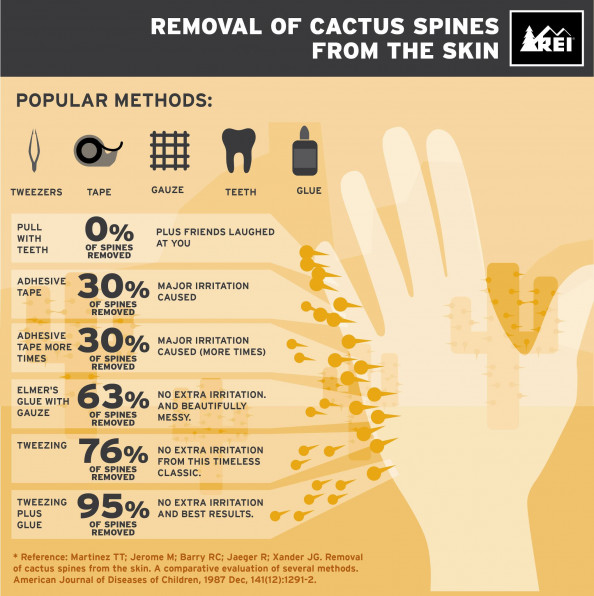 Removal of Cactus Spines From the Skin - REI Infographic