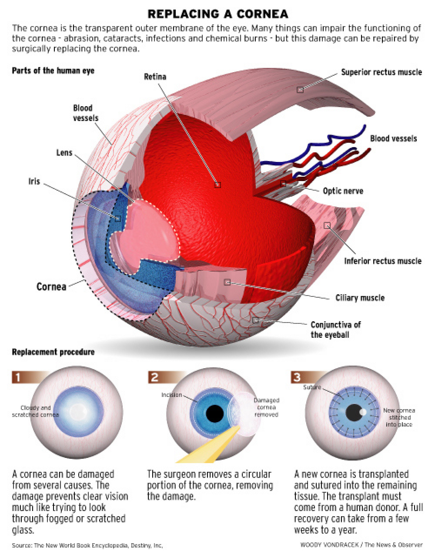 Replacing a Cornea Infographic