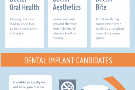Show Off Your Smile with Dental Implants Infographic