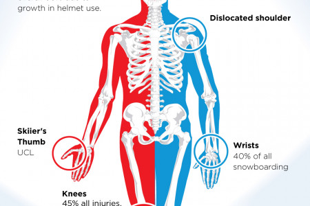 Skiing vs Snowboarding from Whitelines.com Infographic
