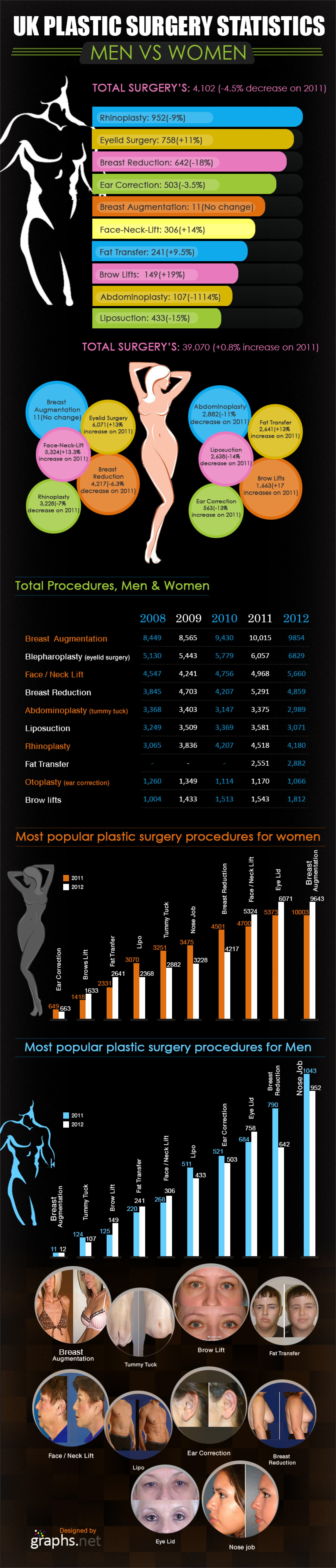 Statistic of Plastic surgery in UK Infographic