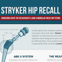 Stryker Hip Recall Infographic