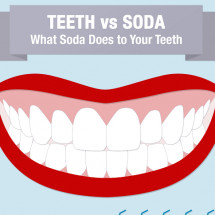 Teeth vs Soda - What Soda Does to Your Teeth Infographic