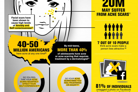 The Emotional Truth About Acne Scars Infographic