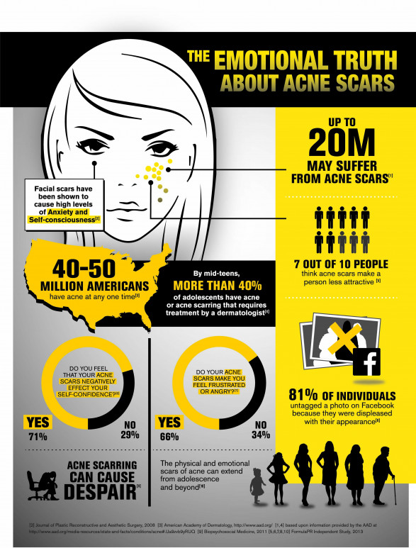 the emotional truth about acne scars 51c1f5c924371 w587 Why treat Acne Scars ?