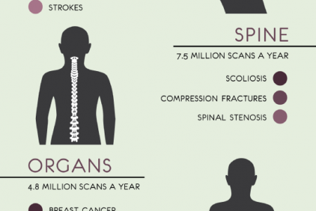 The History and Uses of Magnetic Resonance Imaging  Infographic