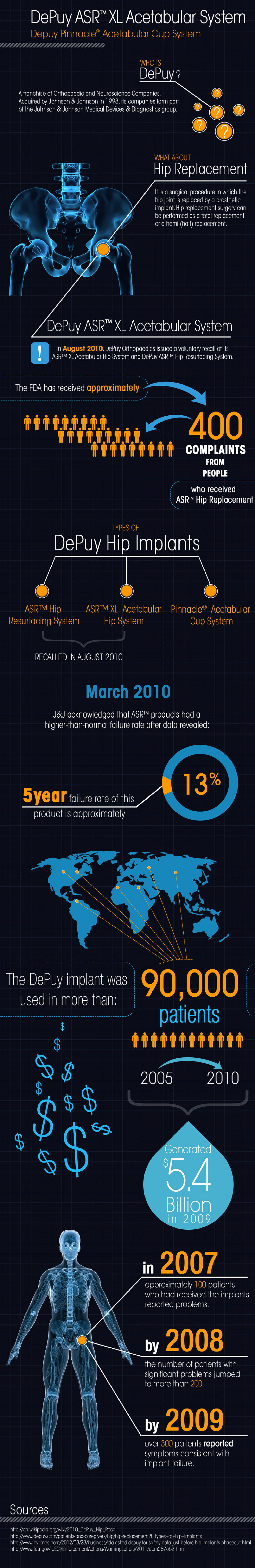The history of recalled medical implant, the Depuy ASR hip replacement Infographic