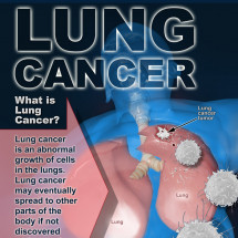 The Lowdown on Lung Cancer Infographic