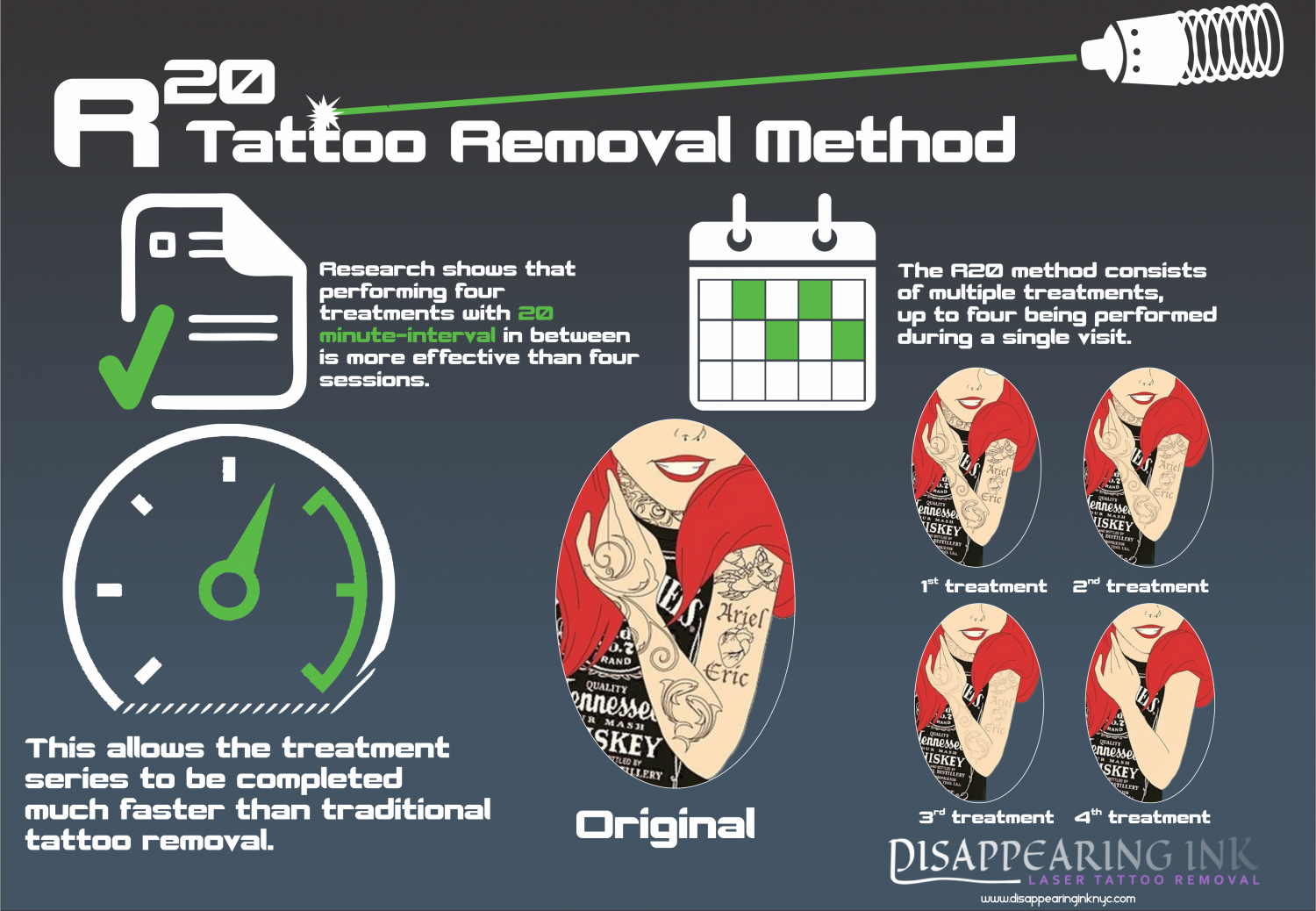 The R20 Method of Removing Tattoo Infographic