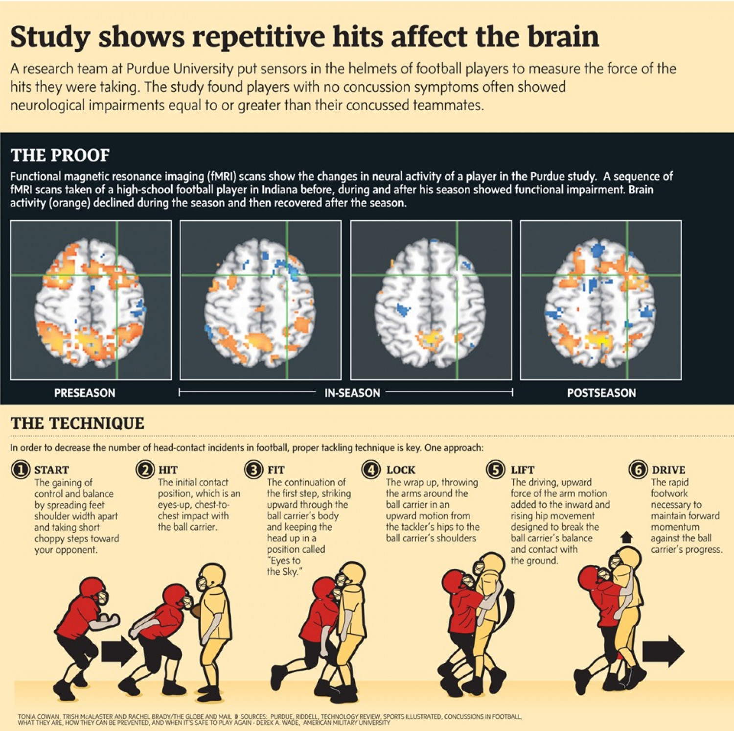 The Science Behind Head Injuries in Football Infographic