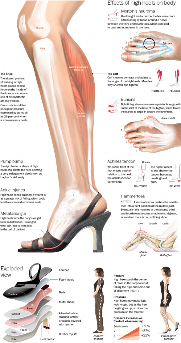 High Heels Infographic: What Pumps Are Actually Doing To ...