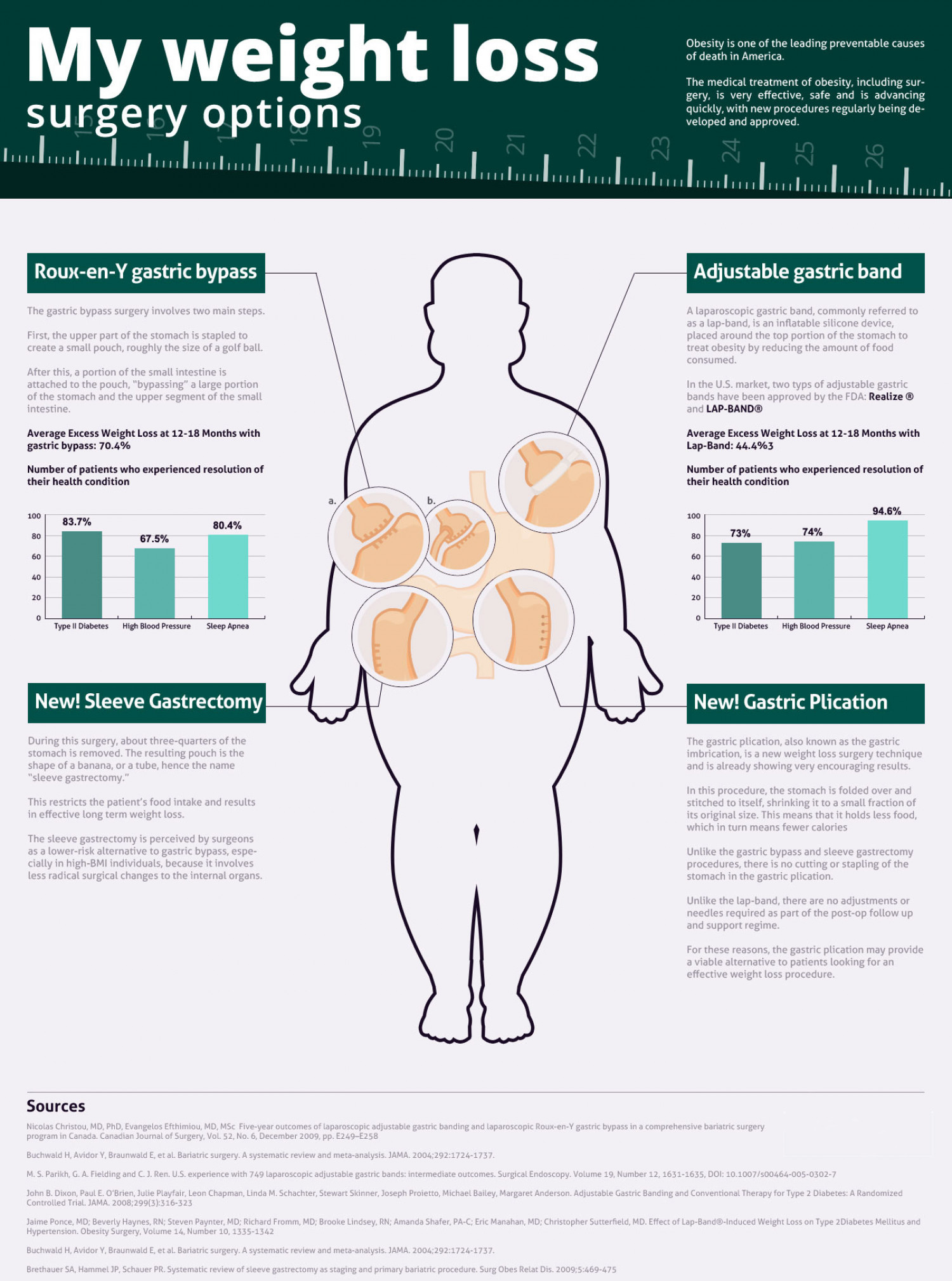 Weight loss Surgery Options Infographic