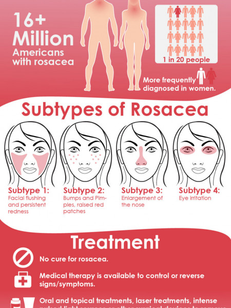 What is Acne Rosacea PyratineXR Infographic