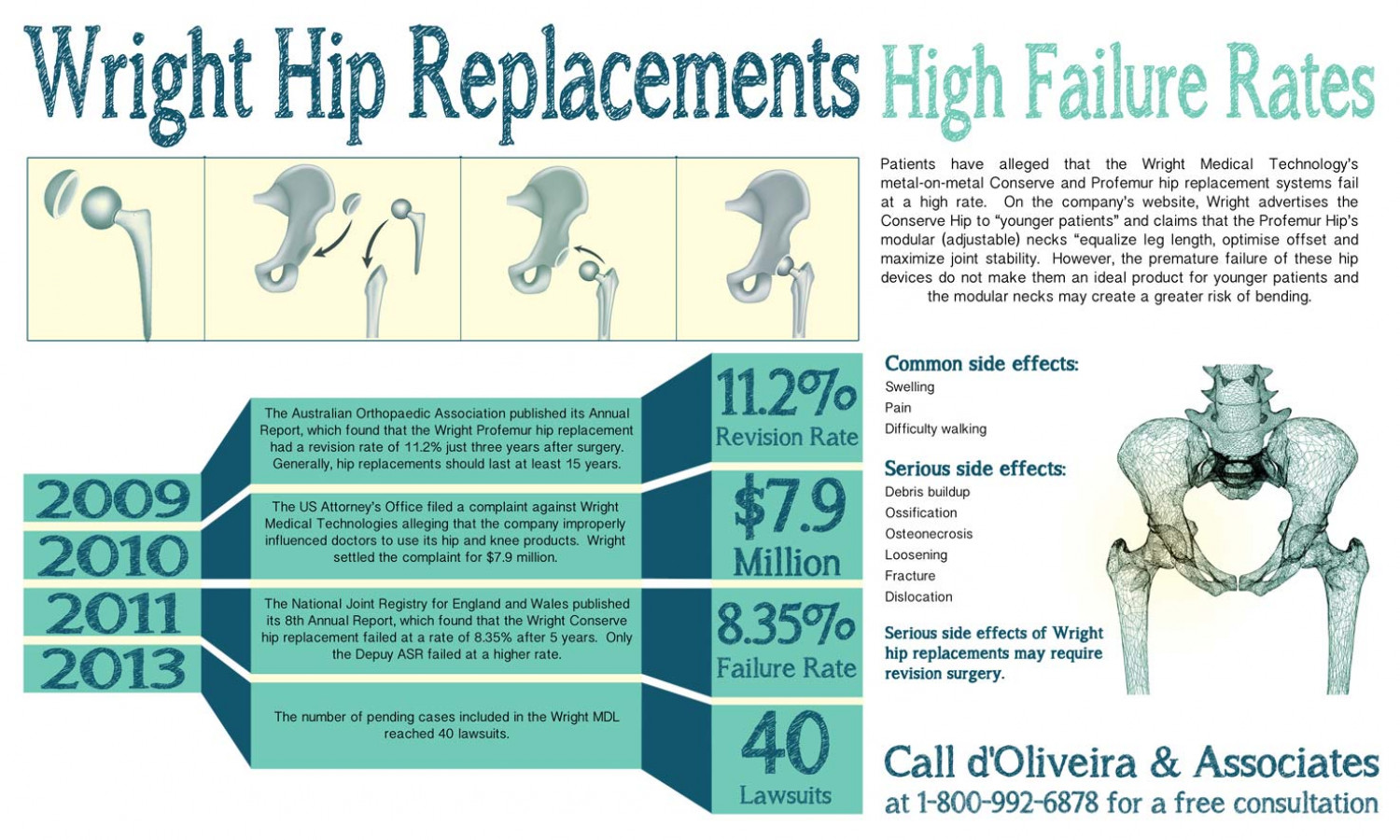 Wright Hip Replacements and High Failure Rates Infographic
