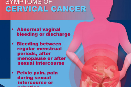 Your Guide to Cervical Cancer Infographic